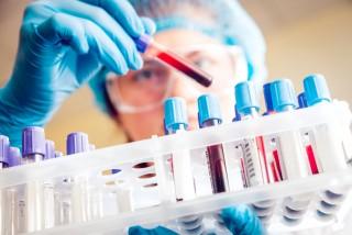 検査(実験)用の血液が入った容器を見る人